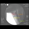Stereoscopic PIV (Flownizer2D3C)